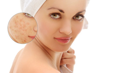 How-To-Get-Rid-Of-Eczema Scars