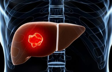 Why India is the Most Preferred Destination for Liver Transplants?