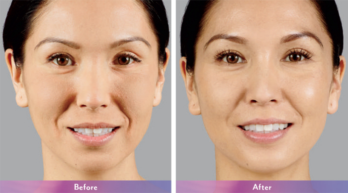 How Can Juvederm Voluma Help Delay Your Desire For Facial Surgery?